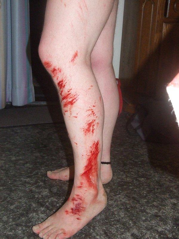 kaputtes Bein